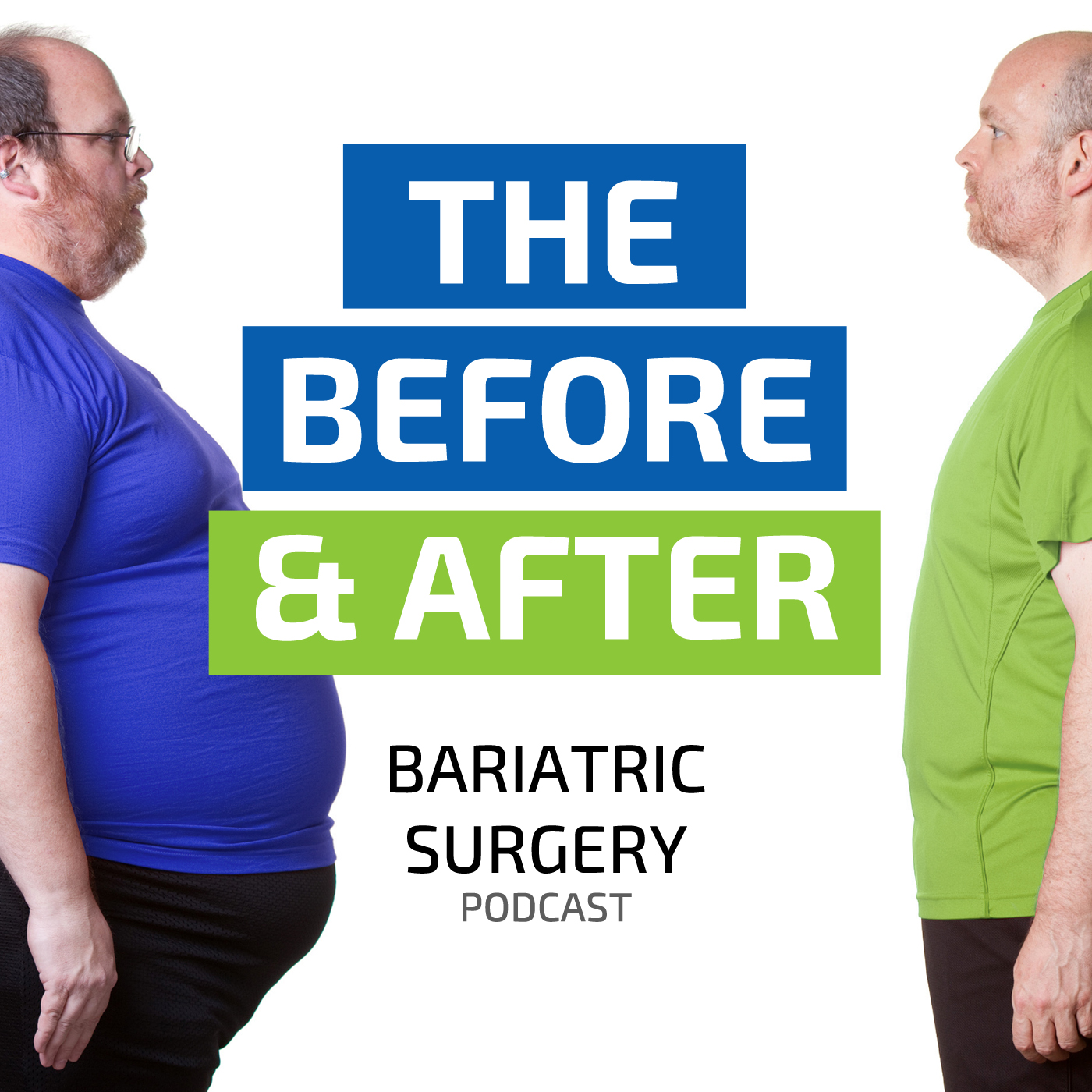 The Before And After Bariatric Surgery Podcast The Pouch Reset